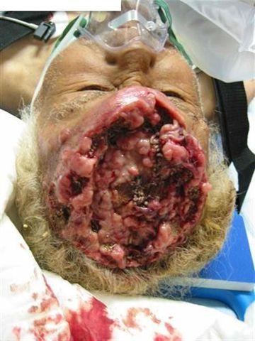 La douleur près du nombril aux helminthes